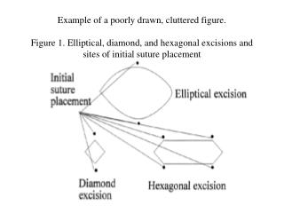 Illustration of an inadequately drawn, messed figure. Figure 1. Circular, precious stone, and hexagonal extractions and