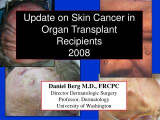 Daniel Berg M.D., FRCPC Director Dermatologic Surgery Professor, Dermatology University of Washington