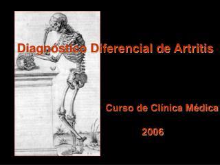 Diagn stico Diferencial de Artritis Curso de Cl nica M dica
